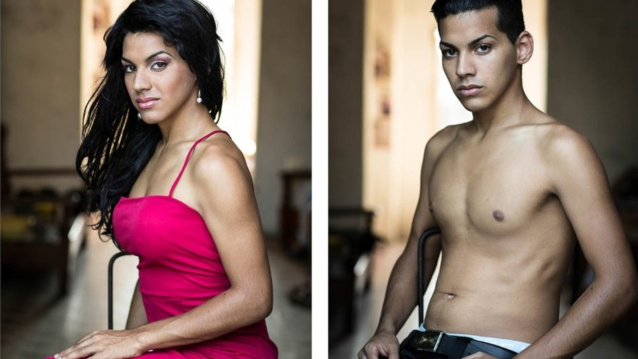 Amateur Tgirl amazing before & after photos of gender reassignment surgeries